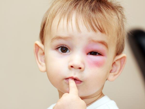 Cách xử lý các vết bầm, sưng cho trẻ em