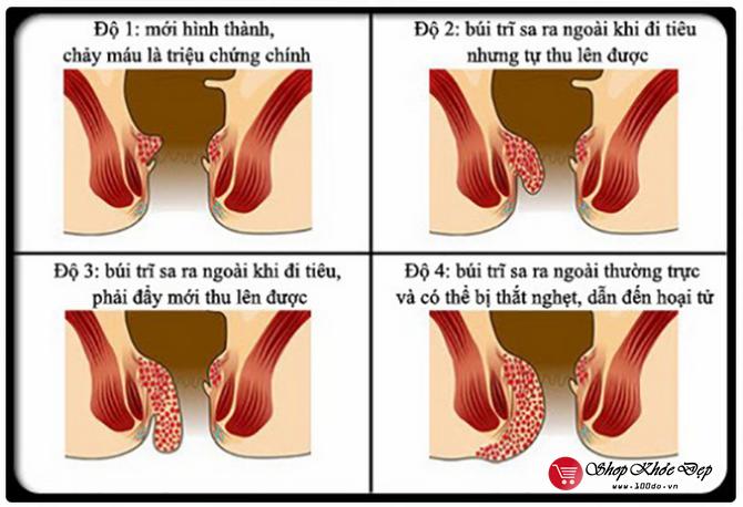 Dấu hiệu bệnh trĩ nhẹ, trĩ nội, trĩ ngoại